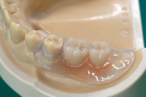 見た目も美しく、しっかり噛めて、食事のしやすい義歯をお作りいたします。